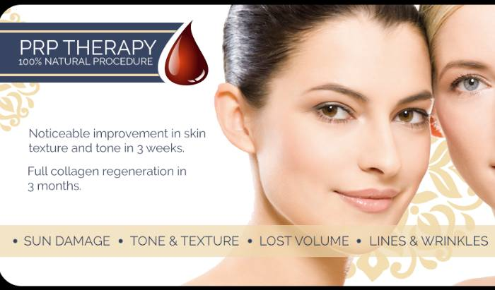 Platelet-Rich Plasma (PRP) therapy image