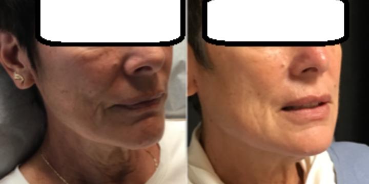Voluma/Contour $600. Get 10 Botox/25 Dysport FREE in same visit!! - Partner Offer Image