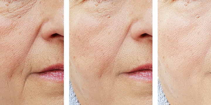 40% Off Anti-Aging Lasers (Limelight, Laser Gensis, Pearl Laser) For First Time Clients - Partner Offer Image