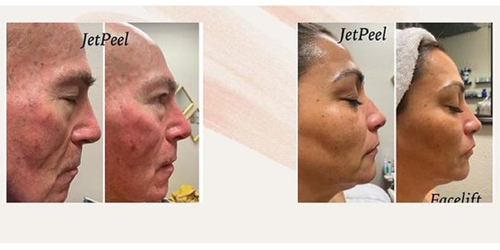 SPECIAL on a new Celebrity Secret Facial! 3 JETPEEL Sessions for ONLY $450 ($300 OFF) offer image