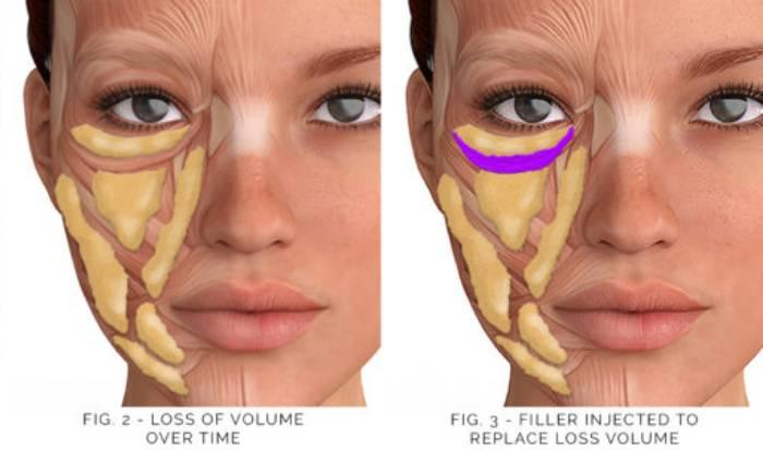 Non surgical enhancements image
