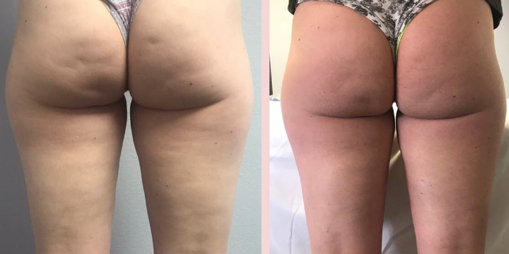 75% OFF of your first ESWT Cellulite Removal!  offer image