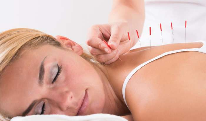 Acupuncture article image