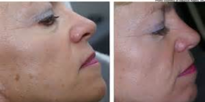 Deluxe facial with Hydrojelly Mask $115.  offer image