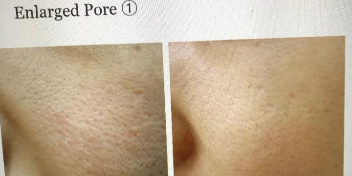 $150 for Laser Carbon Peel  offer image