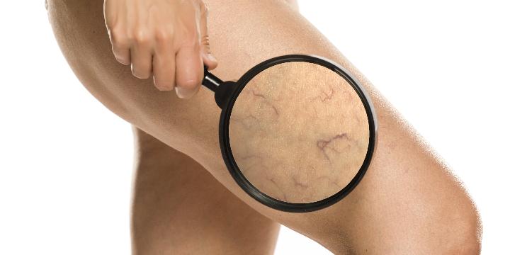 10% off Laser Vein Removal offer image