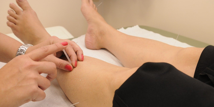 $40 for Acupuncture at Fast Track to Health (50% discount) - Partner Offer Image