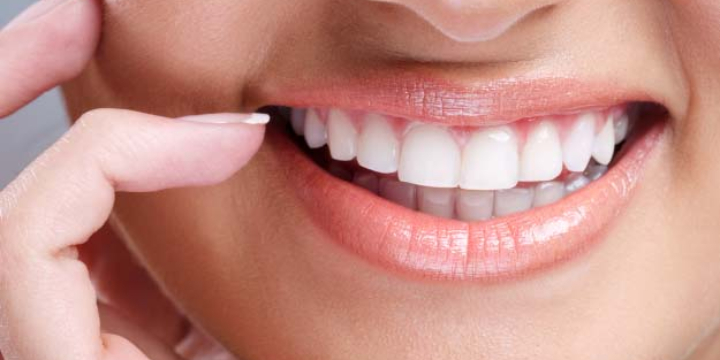 $69 for Smyle Xo Professional Whitening Service at Lori's Wellness Loft (27% discount) - Partner Offer Image