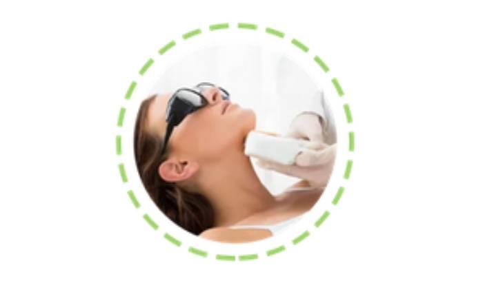 Laser acne treatment image
