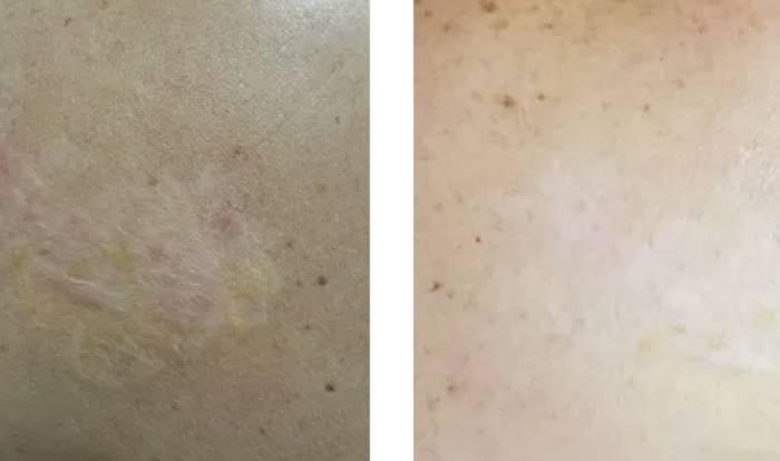 Scar Revision & Areola Repigmantation