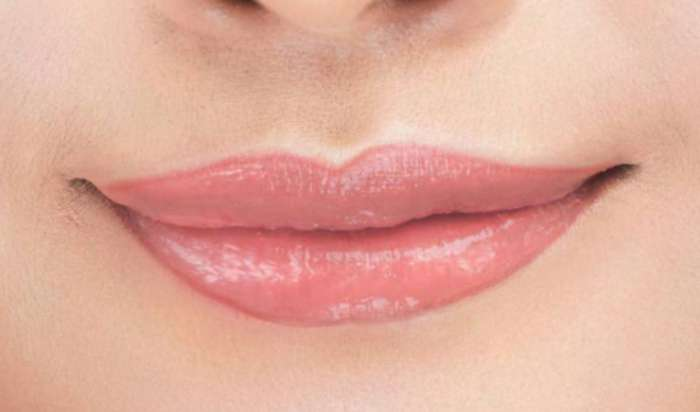 Lip enhancement in Carmichael article image
