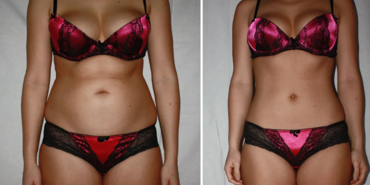 ONLY $199 for Fat Freeze or Sculpt services (80% OFF) offer image