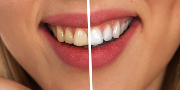 40% OFF Teeth Whitening  offer image