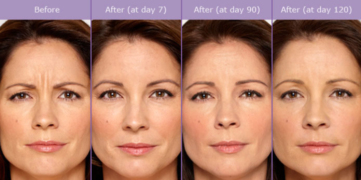 $179 for $179 for 20 units of Botox (NEW PATIENTS ONLY) at Handler Barry S MD: Cosmetic & Reconstructive Surgery (25% discount) - Partner Offer Image