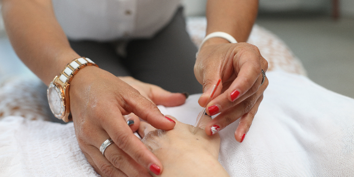 50% Off Initial Acupuncture Treatment offer image