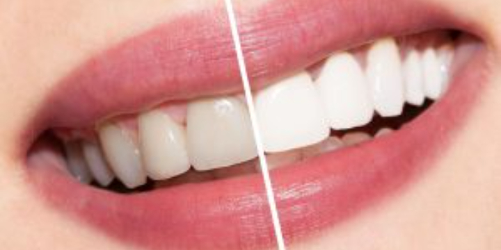 $100 for Teeth Whitening & Spray Tan at Bella Skin Experts (33% discount) offer image