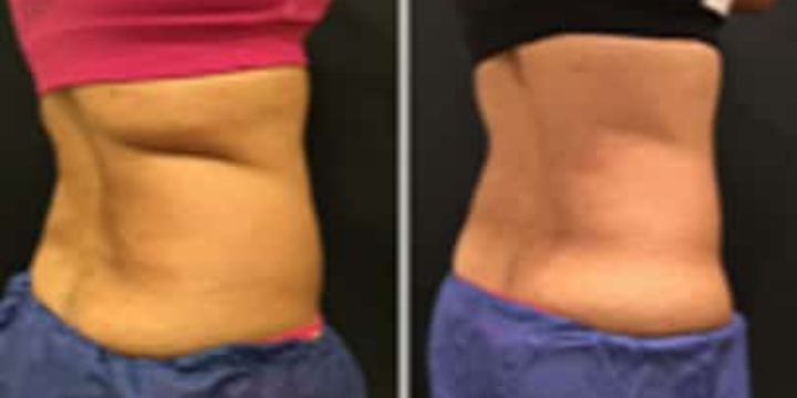 Buy a $200 voucher worth $300 toward Coolsculpting  offer image