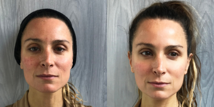 $100 GIFT CARD towards Cryoskin Facial - Partner Offer Image