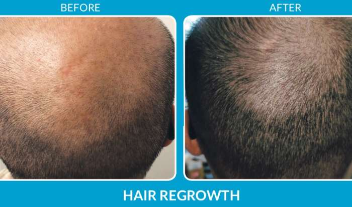 The Best Hair Restoration Treatments in Hampton, NH article image