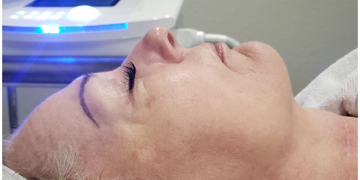 Cryoskin Facials