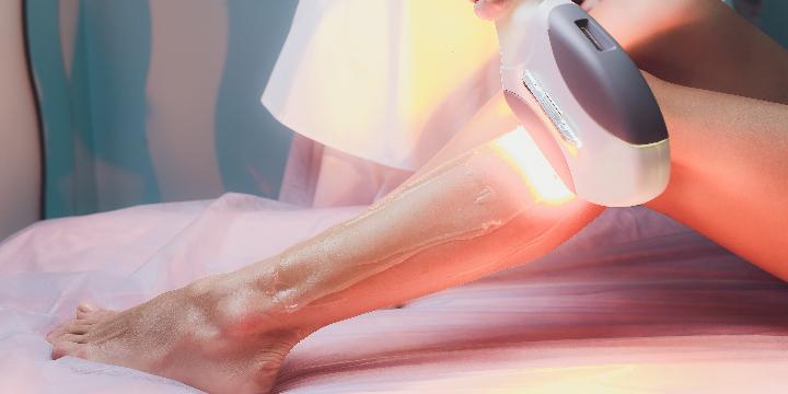 15% OFF Sun Spot Removal - Full Legs offer image