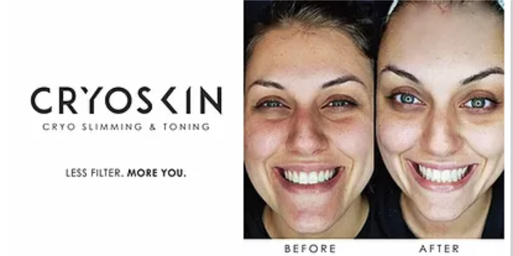 FREE Consultation + $100 OFF First Cryoskin Session - Partner Offer Image