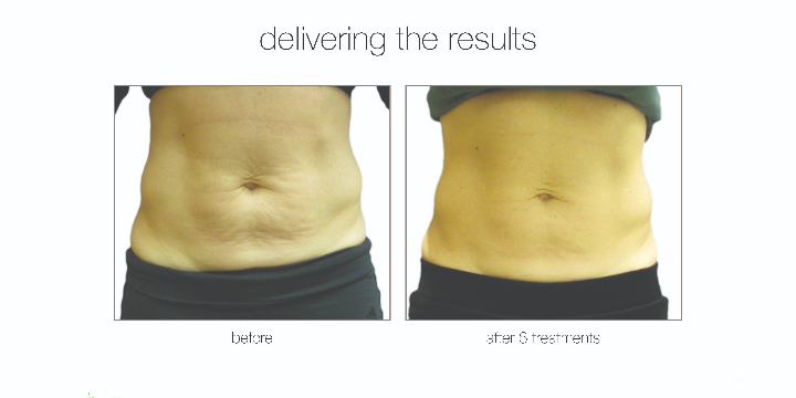 LIMITED 50% OFF FAT REDUCTION offer image