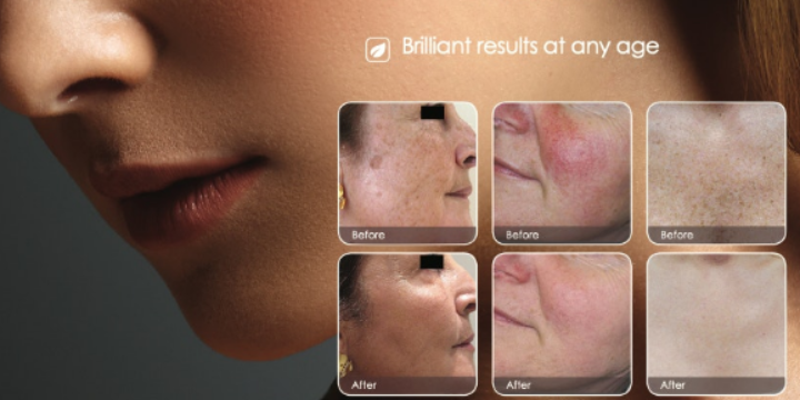 Free Consultation + 50% OFF your First IPL Skin Revitalization Facial - Partner Offer Image