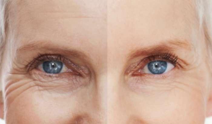 Refirme Skin Tightening in Red Deer, Alberta article image