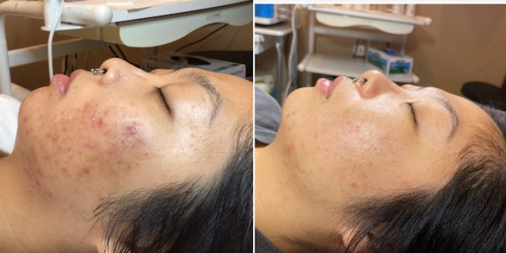 Acne or European Facial $75. Refer a friend for service & earn $$$ - Partner Offer Image