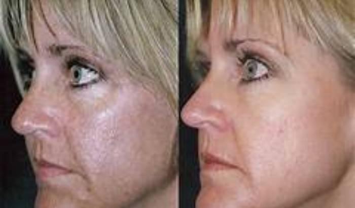 Skin Resurfacing Peels image