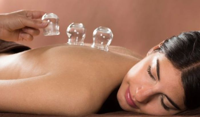 Cupping Therapy article image