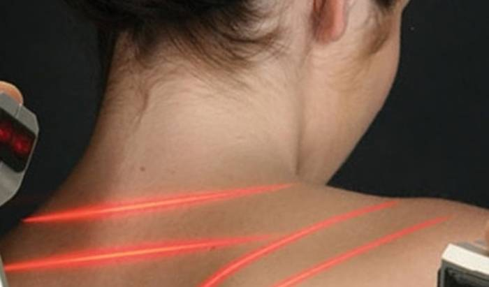 Laser Therapy image