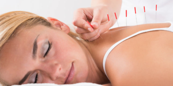 Buy 3 and get your 4th treatment free. (Acupuncture) - Partner Offer Image