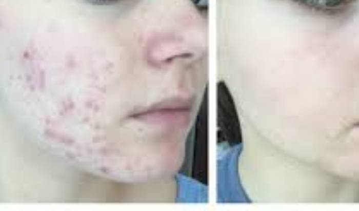 Acne Treatments image